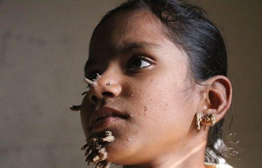 樹人症,夏哈那,罕見,疾病,孟加拉,每日郵報,Shahana Khatun,英國,樹皮 圖/每日郵報 https://goo.gl/o9LMQy
