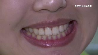 牙周病是胰臟癌前兆!8癌變警訊曝光