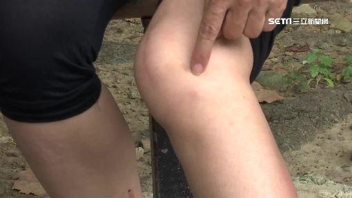 """名醫""""看膝""""一位難求 掛號提前半個月!"""