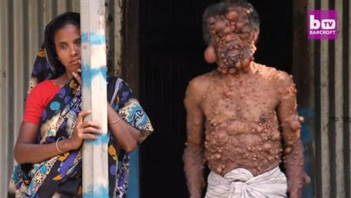 孟加拉,男子,腫瘤(圖/翻攝自YouTube)