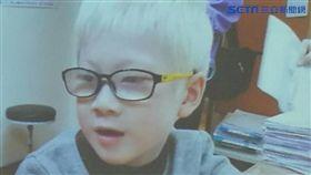 醫師林育葳說,罹患白化症的董小弟,5歲時來台接受視力治療,視力從原本的0.1進步到0.4。(圖/楊晴雯攝)