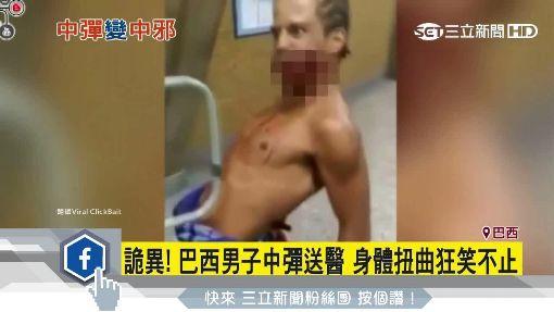詭異! 巴西男子中彈送醫 身體扭曲狂笑不止