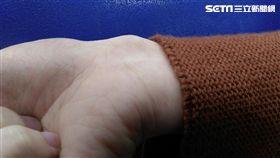 27歲的陳女因天天使用電腦長達10小時,右手腕明顯凸起一顆瘤狀物,就醫檢查是罹患腱鞘囊腫。(圖/童綜合醫院提供)