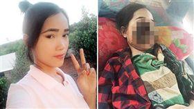 柬埔寨,少女,食肉菌,臉部腐蝕(圖/翻攝自太陽報)
