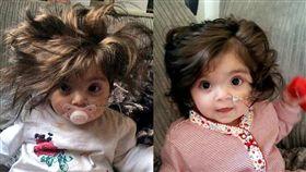 女嬰髮量超多。(圖/翻攝自每日郵報)