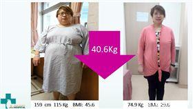 陳小姐接受減重手術,再加上飲食調整、規律運動,體重由115公斤順利降到76.8公斤。(圖/臺安醫院提供)