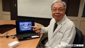 醫師劉國威提醒,色素斑長在嘴唇、口腔黏膜時別輕忽,可能是疾病引起的。(圖/記者楊晴雯攝)