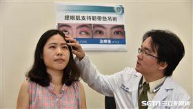 接受提眼肌支持韌帶懸吊手術後,潘同學的左眼已能和右眼對稱,也順利重建眨眼功能。(圖/雙和醫院提供)