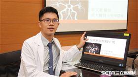 醫師余文豪說,動脈血管病變,是引發兒童缺血性腦中風的主因。(圖/成大醫院提供)