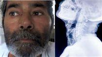 16:9 被外星人抓走?印男體內有75根針 哪來的本人完全不知道 圖/翻攝自鏡報 http://www.mirror.co.uk/news/world-news/patient-leaves-doctors-stumped-after-10334813