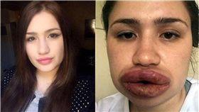 嘴唇,豐唇,整形,整容,土耳其,Merve Keles 圖/翻攝自Gazete Türkiye 臉書