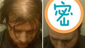 禿頭,髮型(圖/翻攝自《boredpanda》網站)