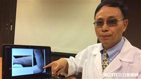 醫師曾興隆提醒,帶狀疱疹非老人專利,年輕人也可能中標,特別容易在免疫力低時發生。(圖/書田提供)