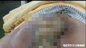 醫師吳元宏臉書貼文分享,一位直腸癌病患因使用偏方治療延誤病情不幸喪命的案例。(圖/擷取自吳元宏臉書)