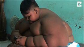 阿里亞,Arya Somantri,印尼,肥胖,切胃 圖/翻攝自環球網