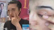中國,大陸,江蘇,南京,手術,雙眼皮,破洞,傷口(江蘇城市頻道http://tw.weibo.com/xljscity)