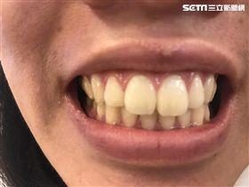 小黃車禍女乘客斷5顆牙,運將沒提醒繫安全帶被起訴。