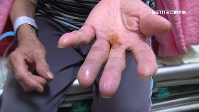 抓蜘蛛被咬1200