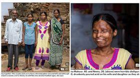 印度,硫酸,酒醉,夫妻 圖/翻攝自每日郵報