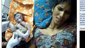 印度,男嬰,嬰兒,畸形,連體嬰(圖/翻攝自每日郵報)