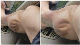 美國,男子,小腿抽筋,肌肉抽搐(圖/翻攝自Angel Bermudez臉書)