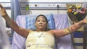 大陸,四川,女子燒傷(圖/翻攝自微博)