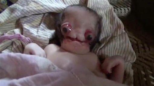 印度,男嬰,畸形,外星人(圖/翻攝自太陽報推特)