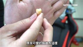 智齒,拔牙,牙醫,咀嚼肌,牙齒