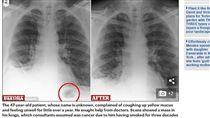 英國,肺部,X光(圖/翻攝自《每日郵報》) http://www.dailymail.co.uk/health/article-4910630/Handyman-47-TOY-CONE-removed-lungs.html
