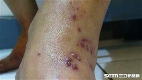 一名40多歲女子膝蓋、關節麻、抽痛,看了復健科、骨科均未改善,最後至皮膚科求診才檢查出是罹患帶狀皰疹所致。(圖/台北醫學大學附設醫院提供)