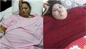Eman Ahmed,埃及,孟買,體重,最胖,Saifee,腹腔鏡縮胃,象皮病 圖/翻攝自鏡報