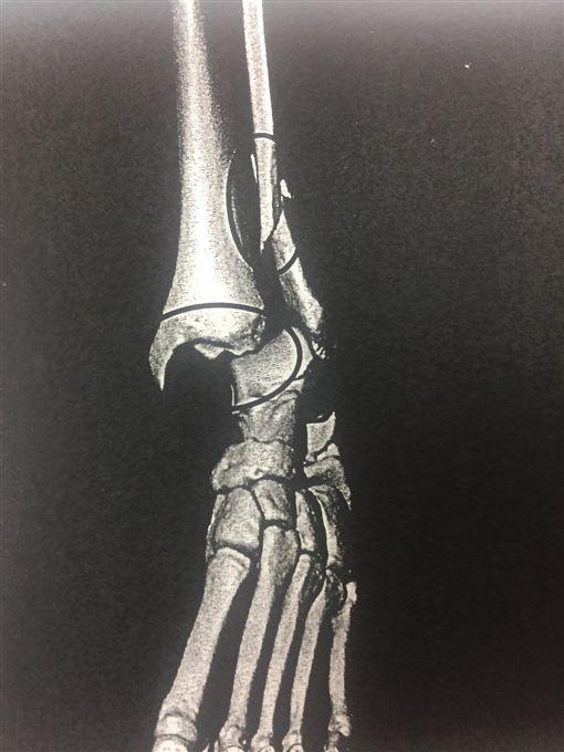 林男遭「斧刃腳」攻擊導致腓骨斷裂腳踝脫臼。(圖/翻攝畫面)