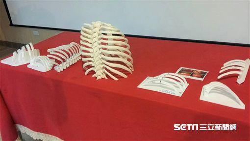 三軍總醫院胸腔外科醫療團隊是國內首次針對病人各種不同肋骨骨折型式,利用3D列印技術在手術前進行個人化設計,有助手術傷口小、減少住院日。(圖/記者楊晴雯攝)