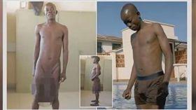 肯亞基比戈里鎮有一名20歲男子歐皮尤(Horace Owiti Opiyo),因為他的命根子被蚊子叮到,導致他的陰莖長91公分、睾丸重約5 公斤,經過兩次「縮陽」手術後才恢復正常(圖/翻攝自YouTube《Showbiz News Channel》)