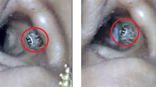 印度有位女子拉克什米(Lekshmi L)半夜常因頭痛、耳痛,讓她徹夜難眠,女子就醫後,竟發現耳朵裡有隻大蜘蛛(圖/翻攝自秒拍)