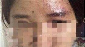 中國大陸,注射,玻尿酸,視力,模糊,失明,針筒(圖/翻攝自微博)https://www.weibo.com/ttarticle/p/show?id=2309351000444141656273214752