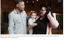 美國,明尼蘇達州,人妻,捐贈 器官 https://www.theguardian.com/us-news/2017/nov/10/your-gift-will-not-be-wasted-face-transplant-patient-meets-donors-widow