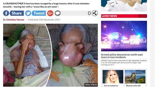 菲律賓,伊迪莎,腫瘤,倒生性乳頭瘤(dailystar https://www.dailystar.co.uk/news/world-news/659769/Tumour-Philippines-health-grandma-photos-pains)