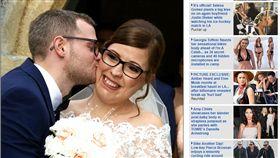 英國,霍爾,Cody Hall,血管瘤,Haemangioma,鬼臉女孩(dailymail http://www.dailymail.co.uk/health/article-5085563/Woman-love-born-deformity.html)