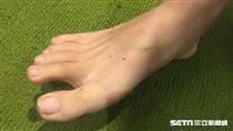 腳臭,光腳ㄚ,腳/示意圖
