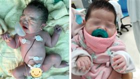 台灣「氧氣罩寶寶」成國際巨星!圓滾滾撒嬌模樣可愛(圖/翻攝自施景中臉書)
