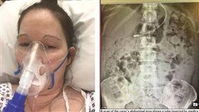 英國布里斯托有一名女子約曼(Kelly Yeoman)日前動了「微創手術」,導致她的腸道受損,現在她只要一進食,糞便就會從她口中吐出。目前她的家人正在籌資金,希望能盡速將她送到倫敦的私人醫院接受治療。(圖/翻攝自每日郵報)