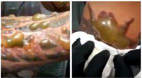 男子刺青感染。(圖/翻攝自Dr Medical Cases臉書) https://www.facebook.com/DrMedicalCases/videos/926389194174780/
