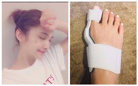 楊丞琳拇指外翻戴矯正器 職業病太傷