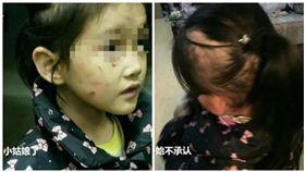 中國大陸,湖南,女童遭母親虐待。(圖/翻攝自微博)