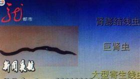 中國大陸,大媽,腎臟病,血尿,寄生蟲(圖/翻攝自微博)http://toutiao.china.com/shsy/gundong4/13000238/20171205/31764965.html