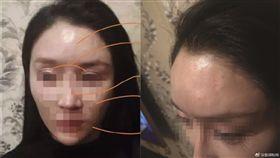 她花22萬整成「網美臉」 卻被酒瓶砸中…額頭秒凹陷變形 圖翻攝自微博 http://weibo.com/1652484947/FzhyG4cbY?refer_flag=1001030103_