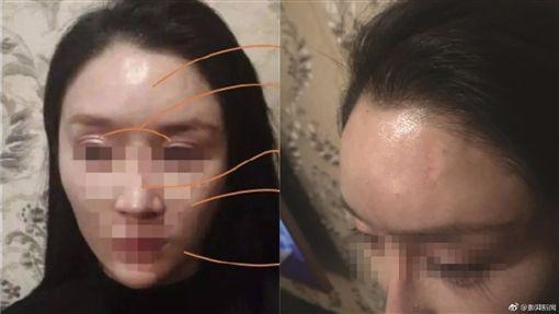 她花22萬整成「網美臉」 卻被酒瓶砸中…額頭秒凹陷變形圖翻攝自微博http://weibo.com/1652484947/FzhyG4cbY?refer_flag=1001030103_