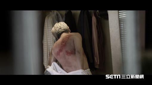 連穿脫衣物都會引起帶狀疱疹患者嚴重疼痛。(情境照非新聞當事人/台安醫院提供)