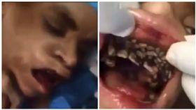 男子,口腔裡爬滿蛆蟲,口腔蠅蛆病(圖/翻攝自YouTube)
